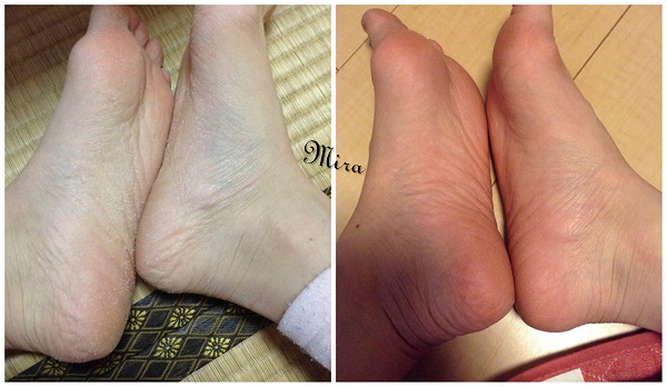 Trải nghiệm của Mira về sản phẩm mặt nạ ủ chân tẩy tế bào chết và các vết chai sần của Baby Foot