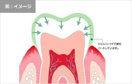 Kem đánh răng ngừa sâu răng của Nhật