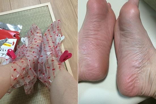 Túi ủ chân Nhật Bản Baby Foot tẩy da chết