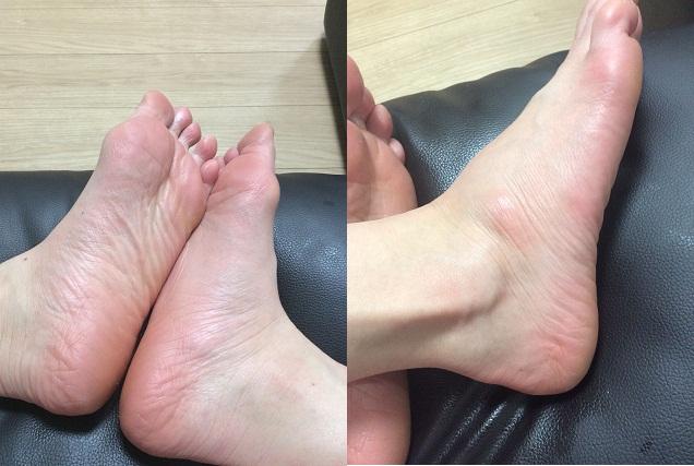 Tẩy da chết Baby Foot