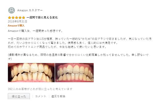 Kem đánh trắng răng của Nhật
